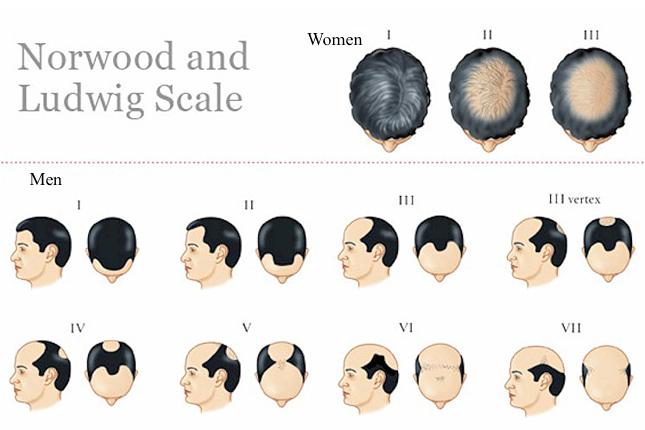 est ce que la perte de cheveux est naturelle ce qui cause la perte de cheveux. Black Bedroom Furniture Sets. Home Design Ideas